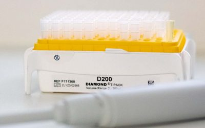 What is the difference between Covid PCR, Antigen and Antibody Tests
